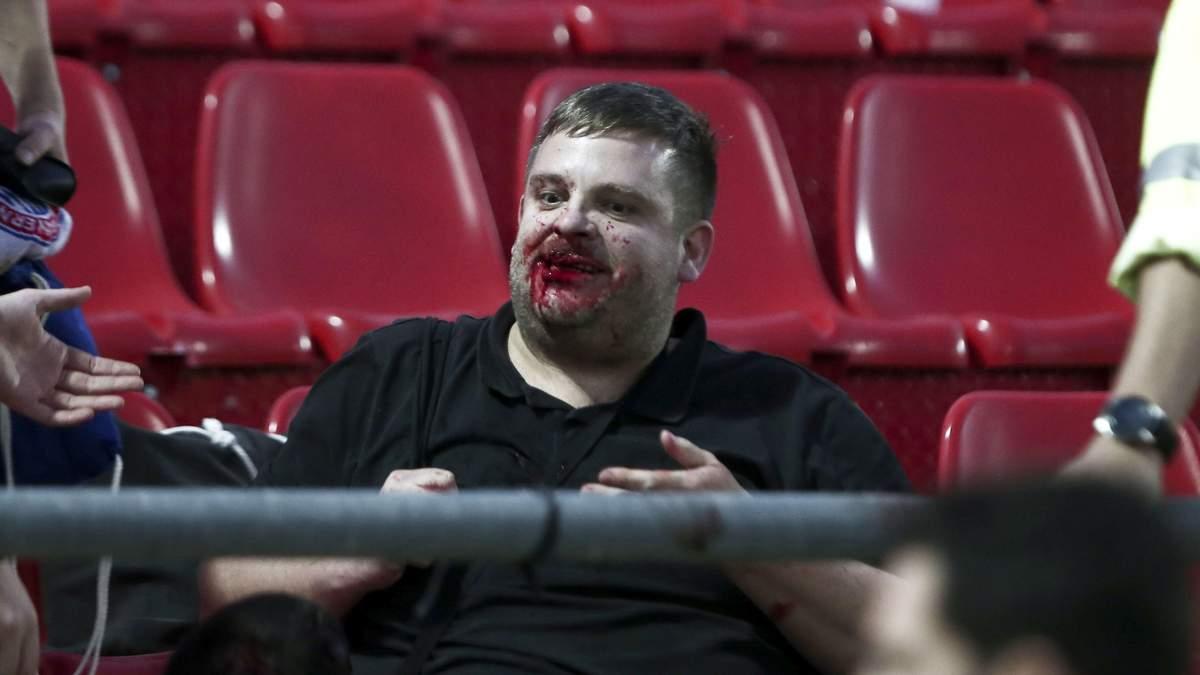 На матче юношеской Лиги чемпионов фанаты атаковали соперников палками: кровавые фото и видео 18+