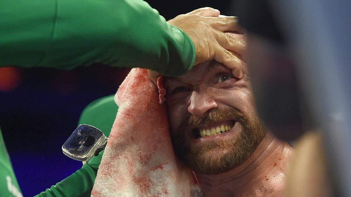 Тайсон Фьюри получил сенсационного соперника на следующий бой