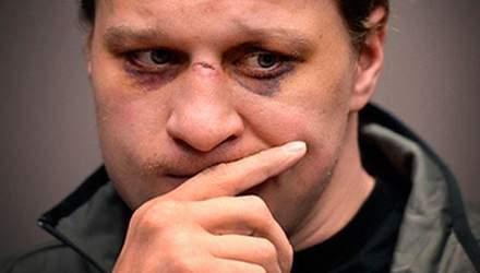 Поветкин признал: Сам виноват, что проиграл Кличко
