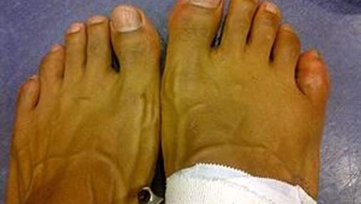 Девід Хей: Не переміг Кличка через зламаний палець