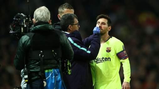 Стали відомі наслідки травми Ліонеля Мессі у матчі Ліги чемпіонів