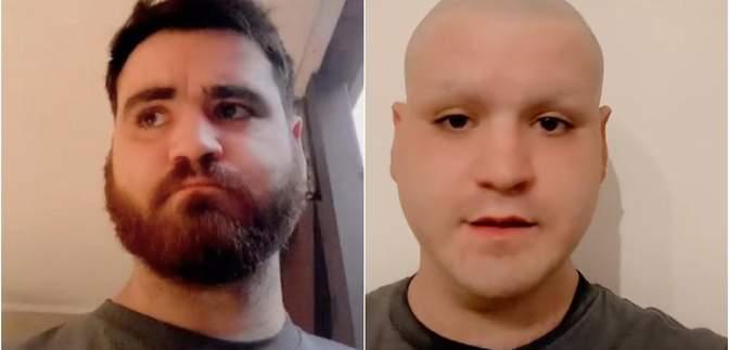 Вболівальник поголив голову, бороду і брови після поразки Англії на Євро-2020: курйозне відео